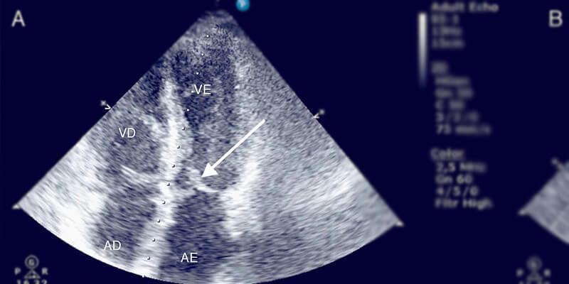 Ecocardiograma: como é feito e para que serve