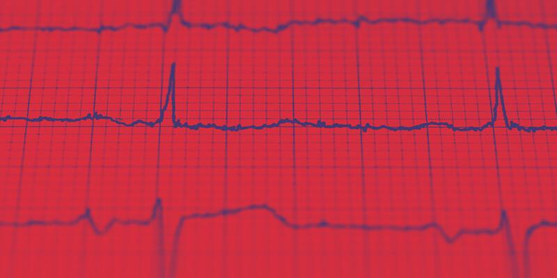 Exames do coração: quais são os mais recomendados e quando fazer